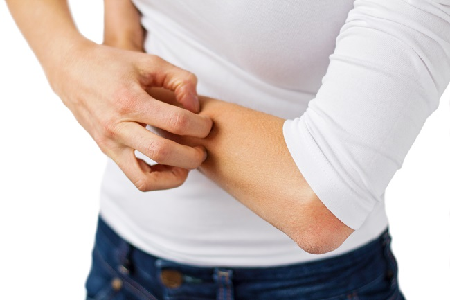 Breaking the 'Itch-Scratch Cycle' of Eczema